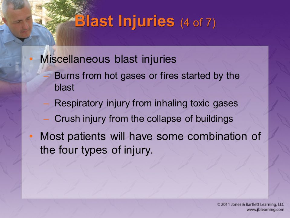 Blast Injuries (4 of 7) Miscellaneous blast injuries