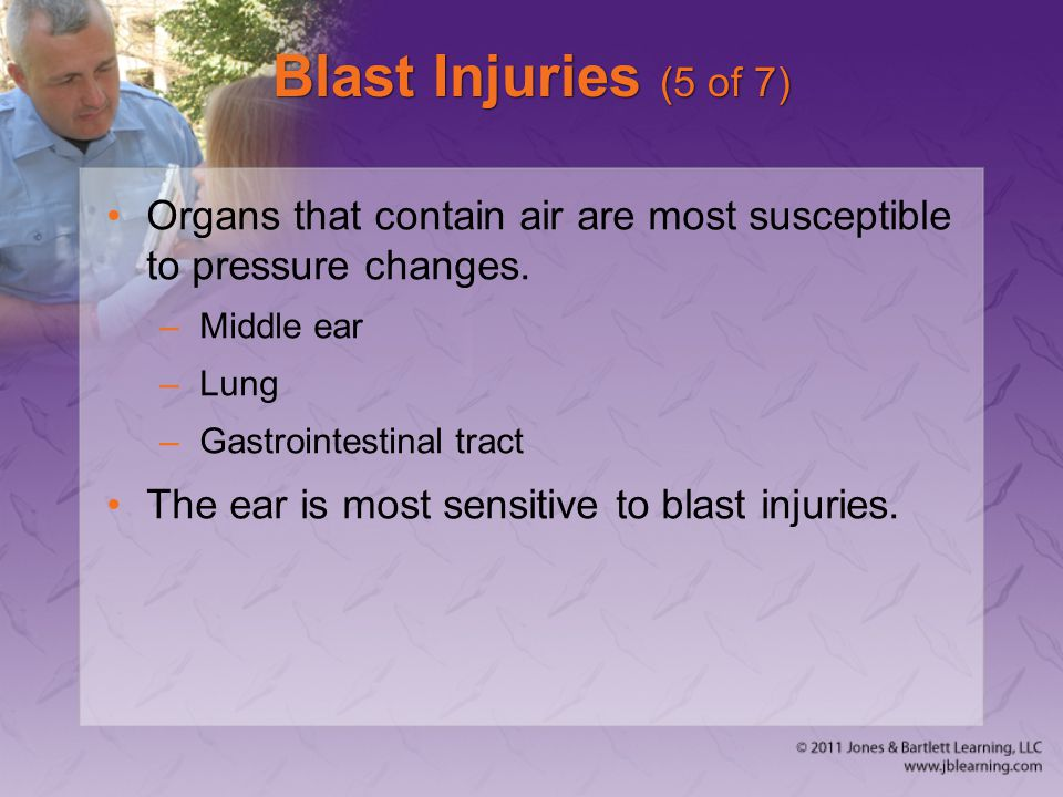 Blast Injuries (5 of 7) Organs that contain air are most susceptible to pressure changes. Middle ear.