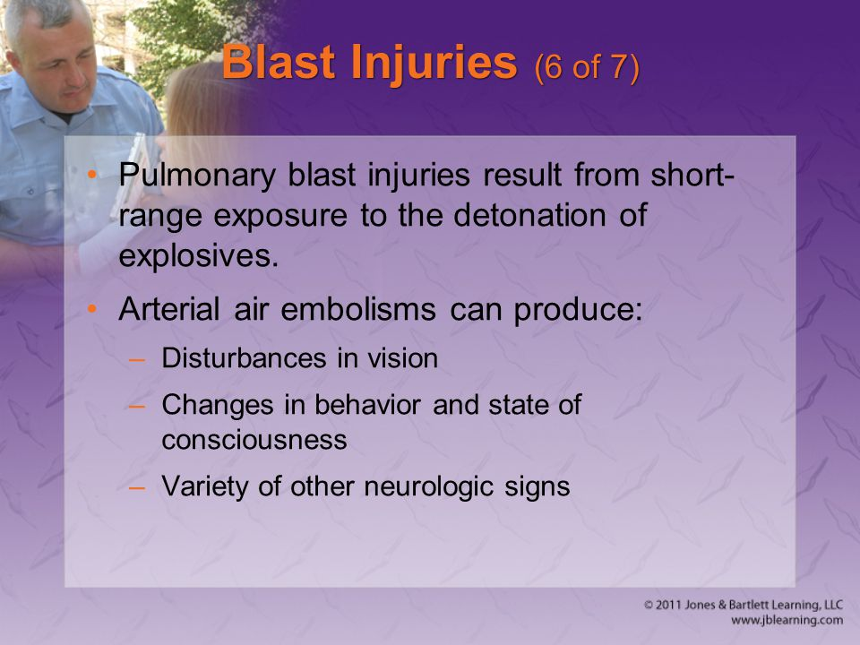 Blast Injuries (6 of 7) Pulmonary blast injuries result from short-range exposure to the detonation of explosives.