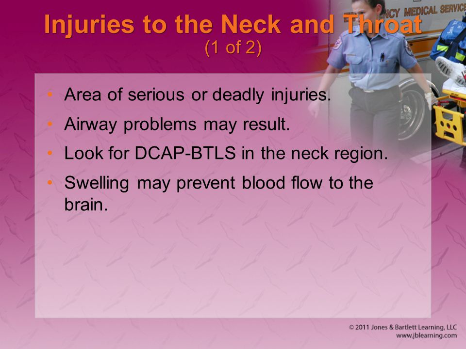 Injuries to the Neck and Throat (1 of 2)