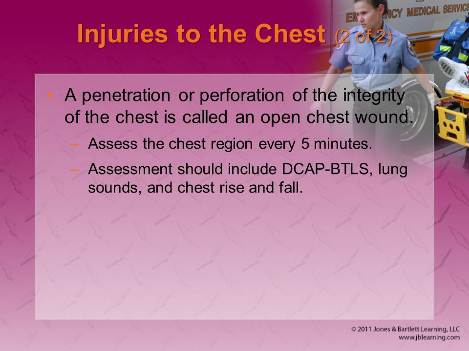 Injuries to the Chest (2 of 2)