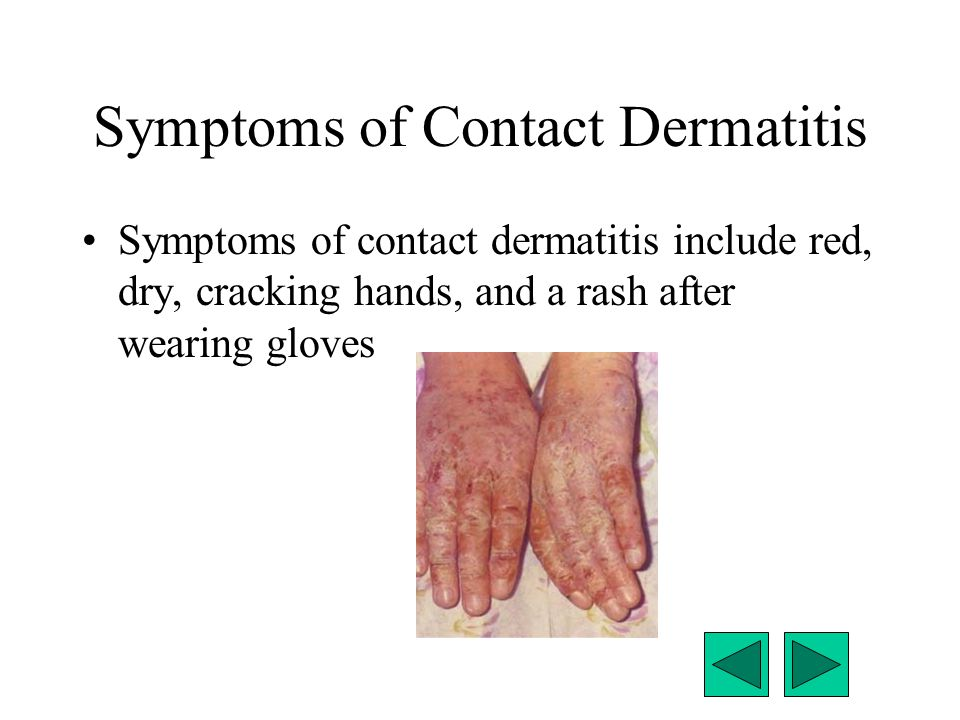 Symptoms of Contact Dermatitis