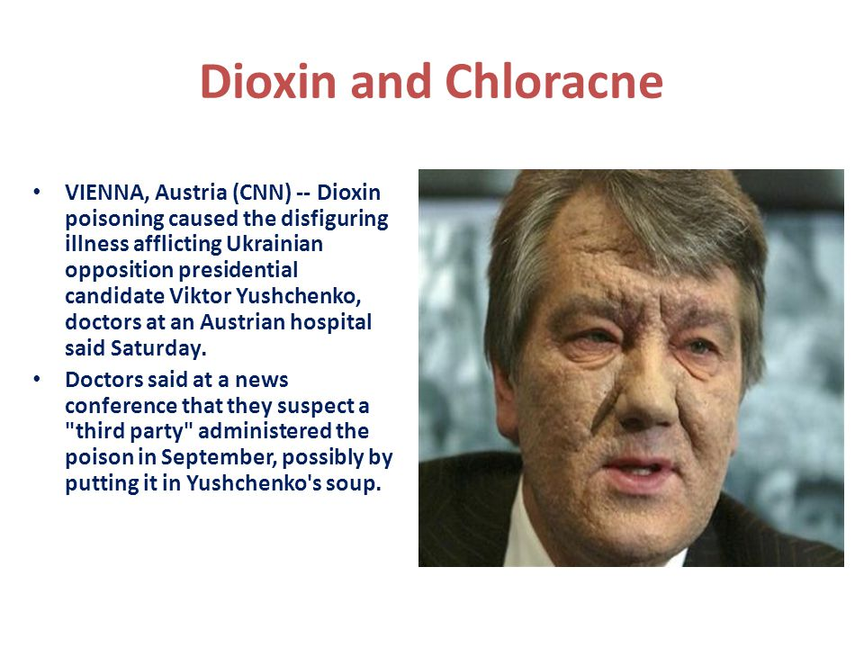 Dioxin and Chloracne