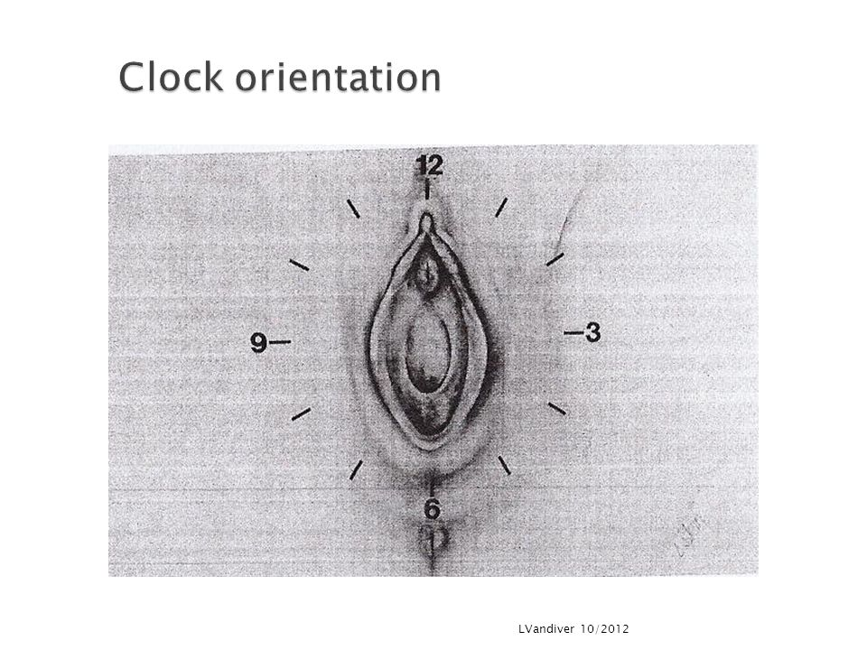 Clock orientation LVandiver 10/2012