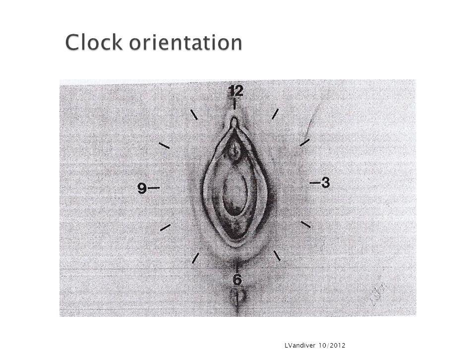 Clock orientation LVandiver 10/2012