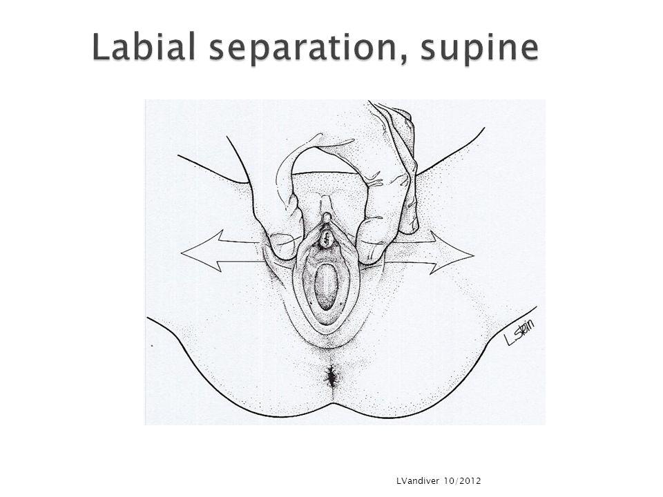 Labial separation, supine
