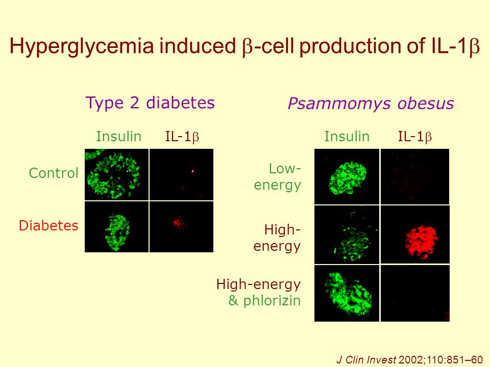 Hyperglycemia induced -cell production of IL-1