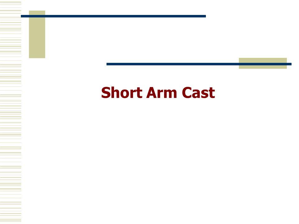 Short Arm Cast