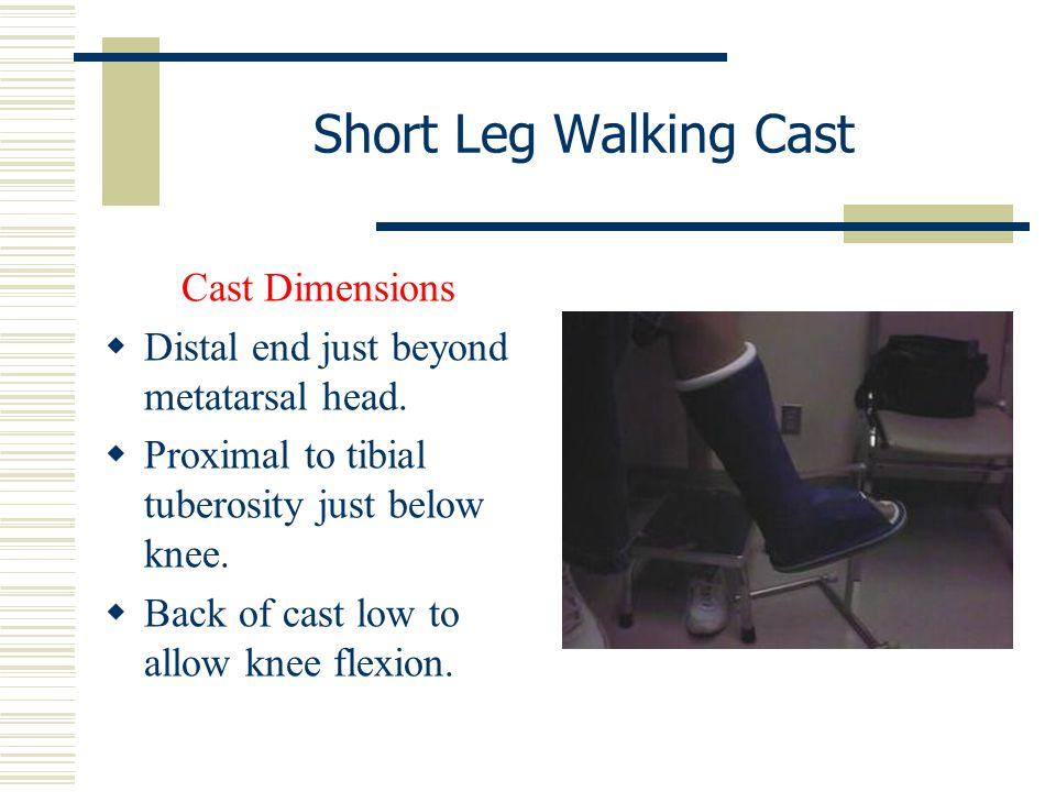 Short Leg Walking Cast Cast Dimensions