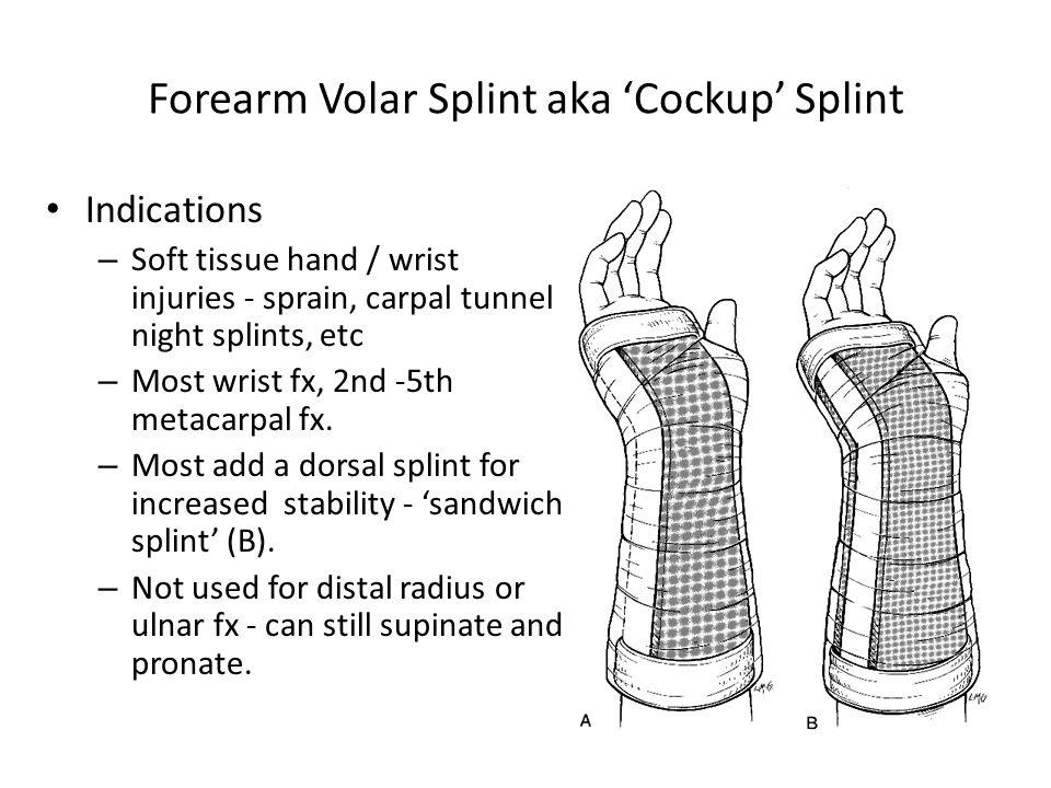 Forearm Volar Splint aka 'Cockup' Splint