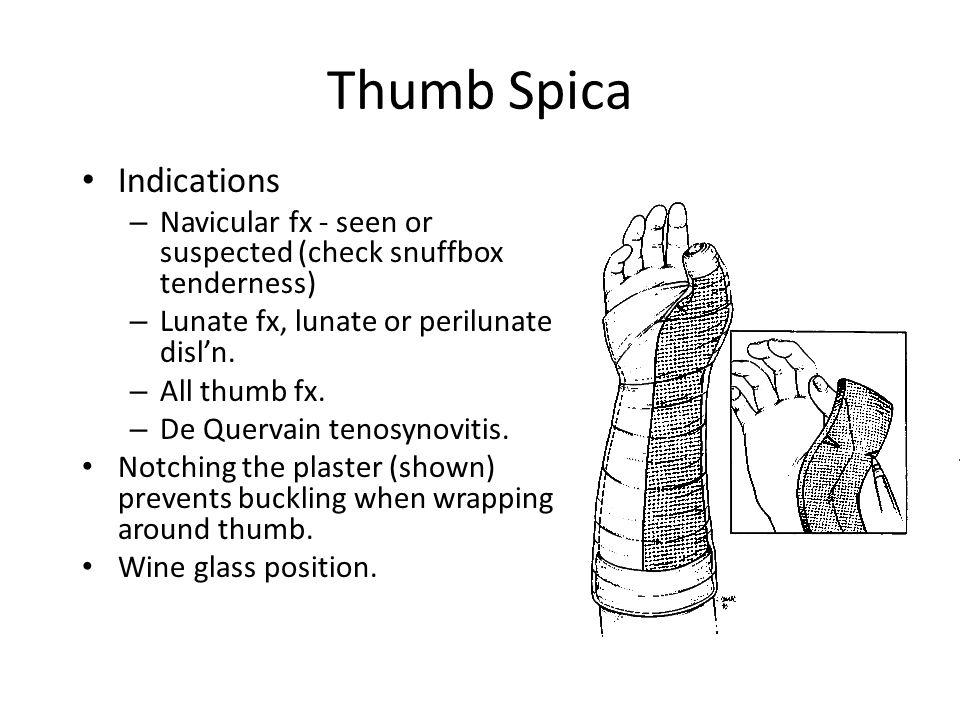 Thumb Spica Indications