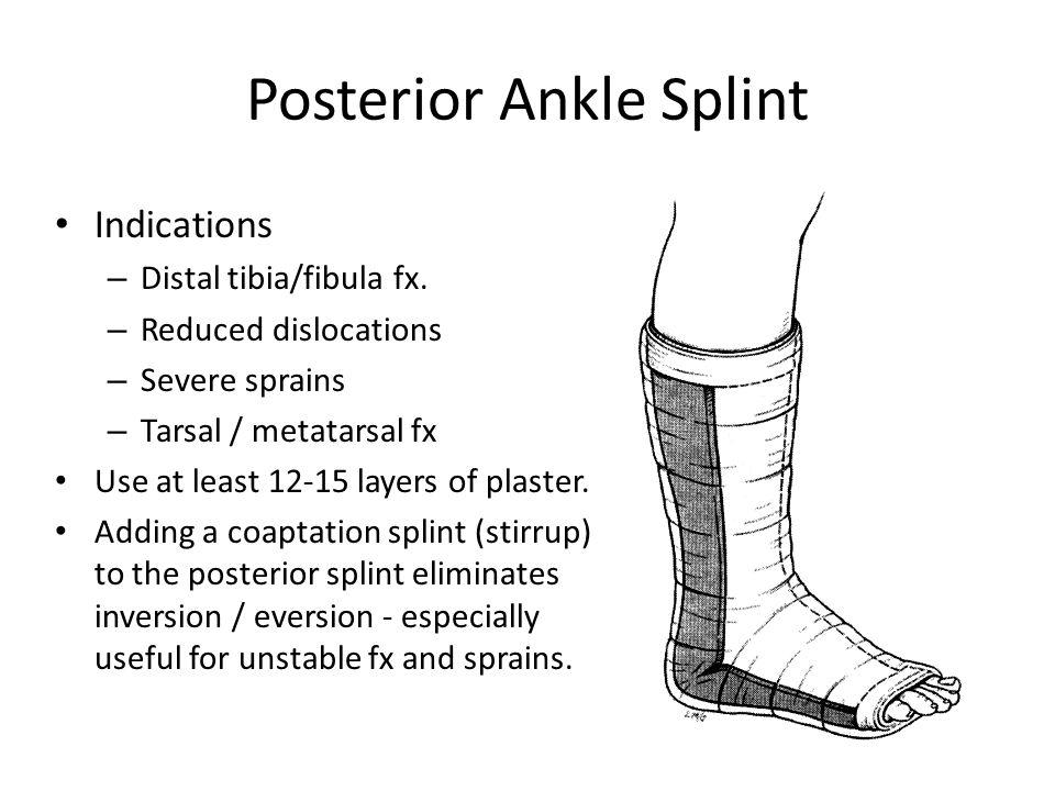 Posterior Ankle Splint