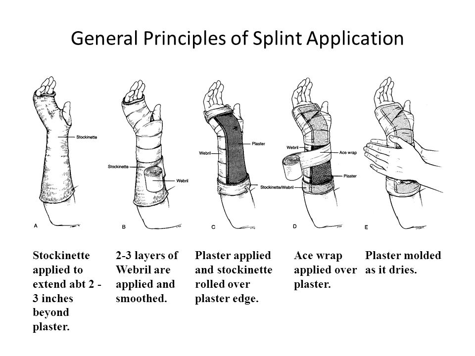 General Principles of Splint Application