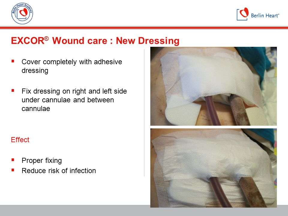 EXCOR® Wound care : New Dressing