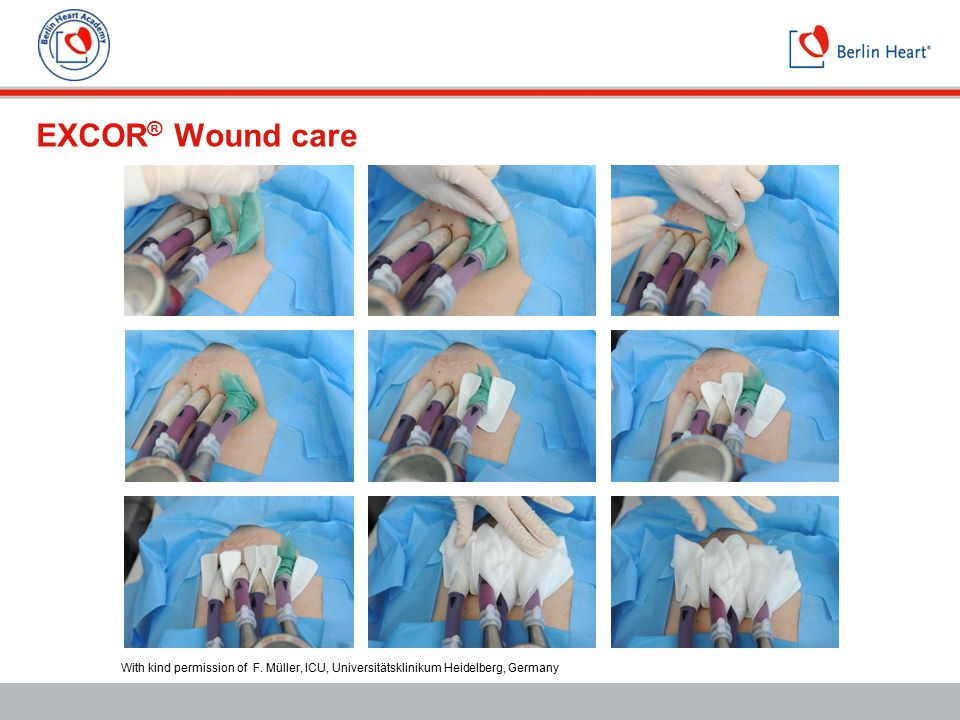 EXCOR® Wound care With kind permission of F. Müller, ICU, Universitätsklinikum Heidelberg, Germany