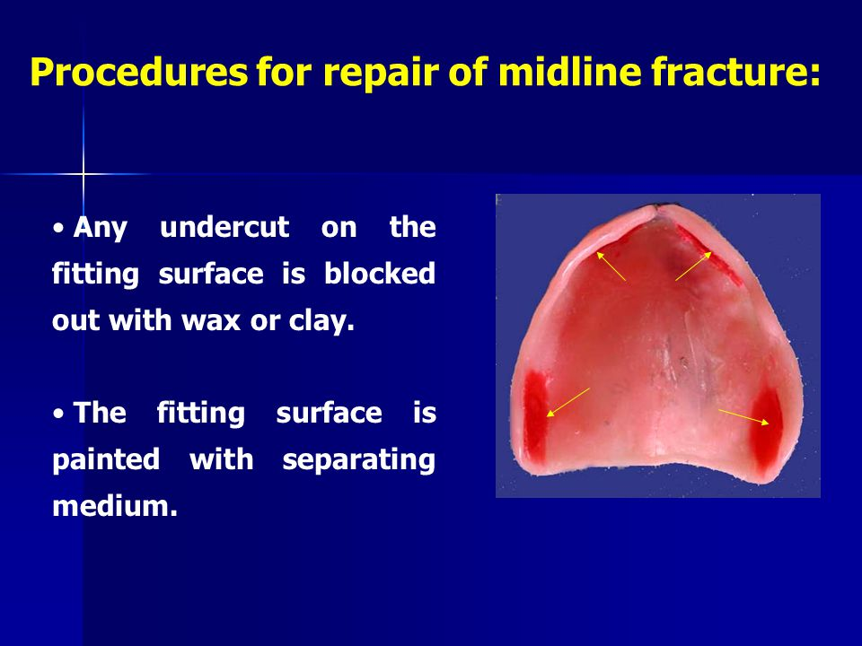 Procedures for repair of midline fracture: