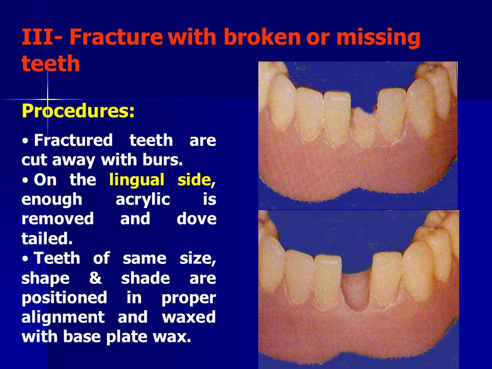 III- Fracture with broken or missing teeth