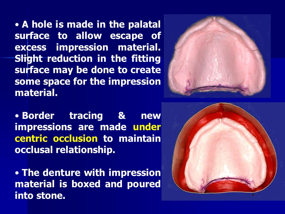 A hole is made in the palatal surface to allow escape of excess impression material. Slight reduction in the fitting surface may be done to create some space for the impression material.