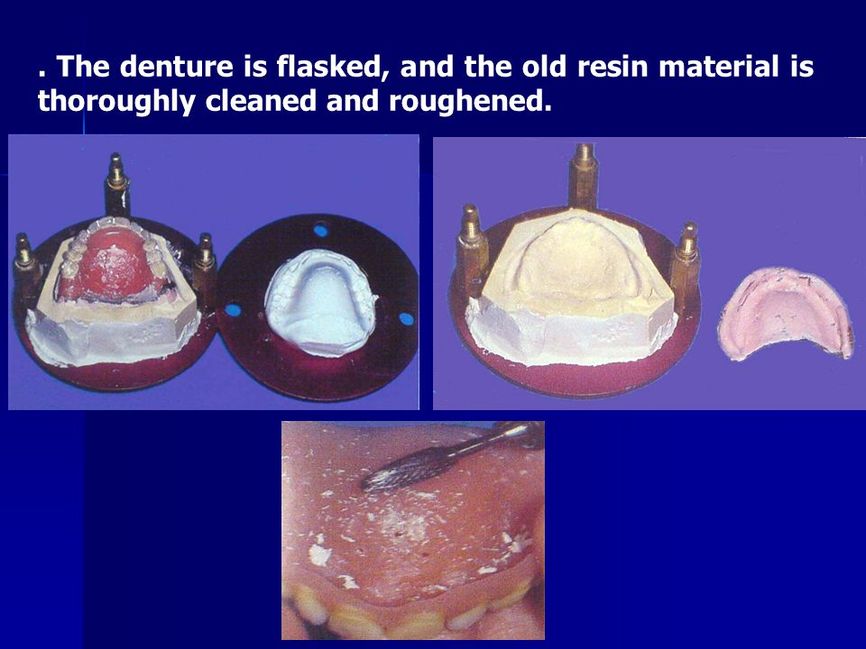 . The denture is flasked, and the old resin material is thoroughly cleaned and roughened.