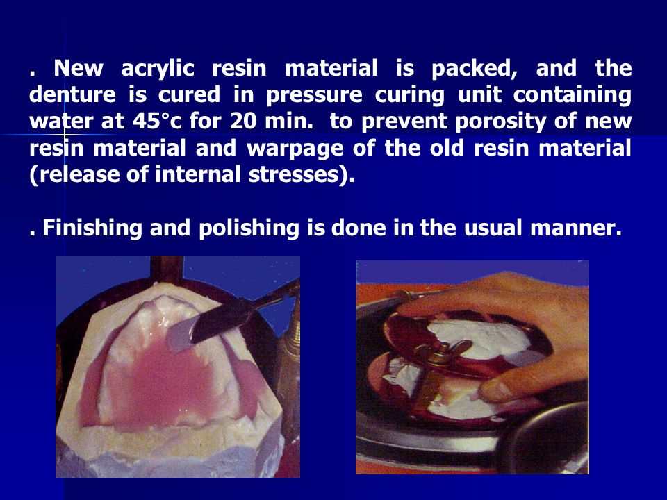 . New acrylic resin material is packed, and the denture is cured in pressure curing unit containing water at 45°c for 20 min. to prevent porosity of new resin material and warpage of the old resin material (release of internal stresses).