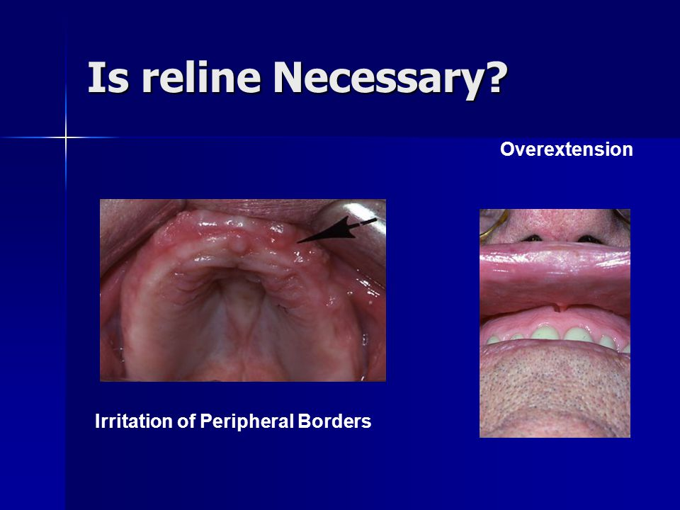 Is reline Necessary Overextension Irritation of Peripheral Borders
