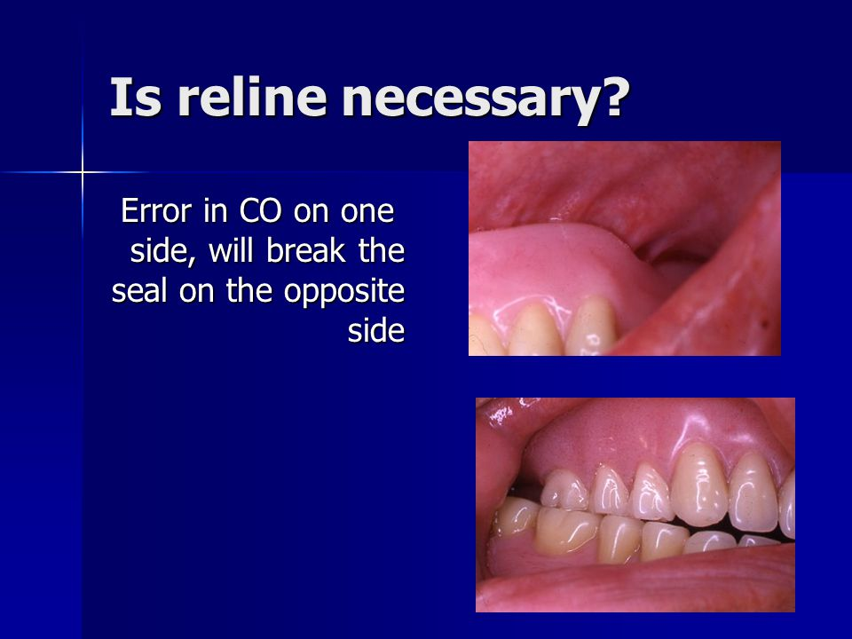 Is reline necessary Error in CO on one side, will break the seal on the opposite side