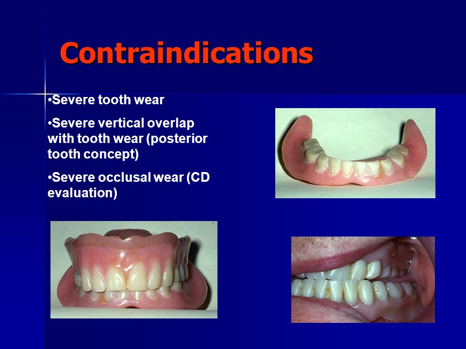 Contraindications Severe tooth wear