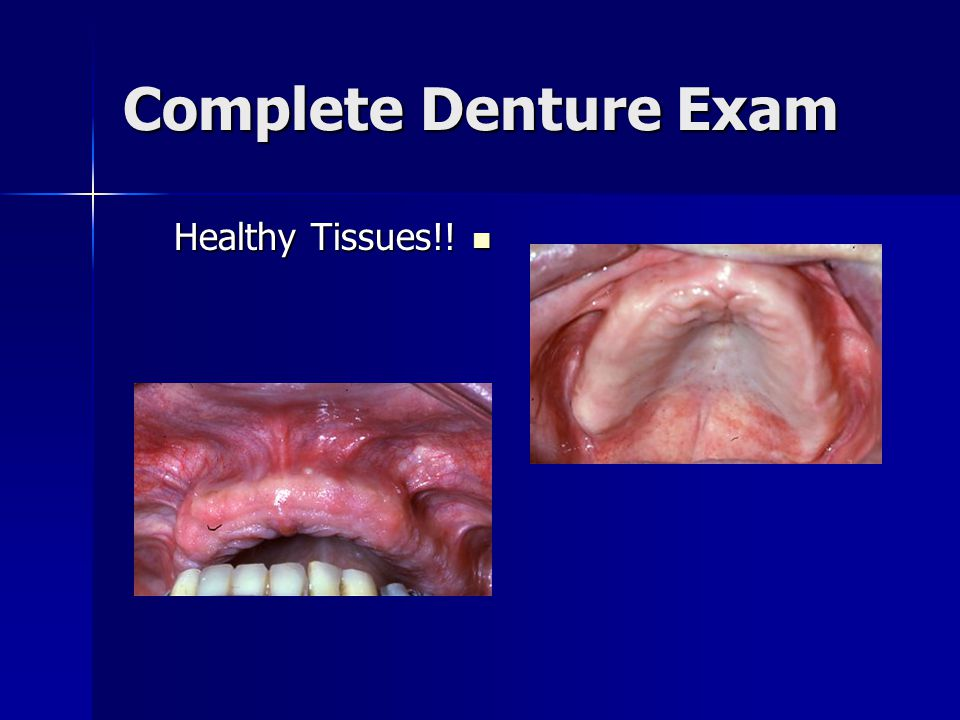 Complete Denture Exam Healthy Tissues!!