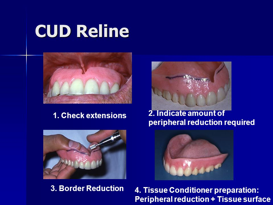 CUD Reline 2. Indicate amount of peripheral reduction required
