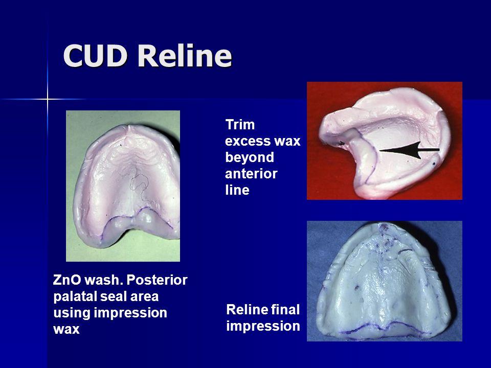 CUD Reline Trim excess wax beyond anterior line