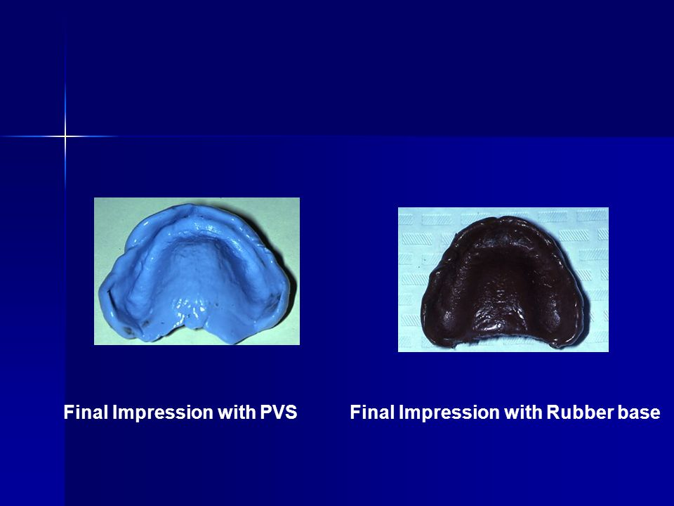 Final Impression with PVS