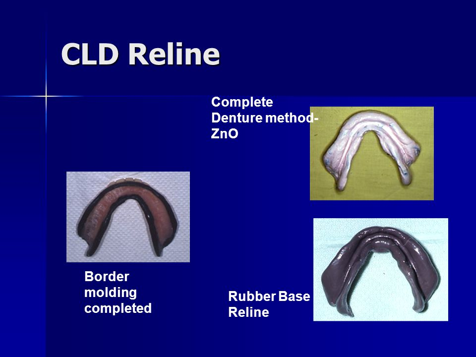 CLD Reline Complete Denture method-ZnO Border molding completed