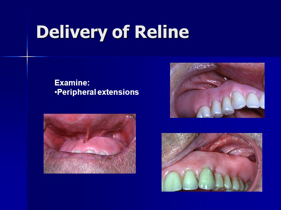 Delivery of Reline Examine: Peripheral extensions