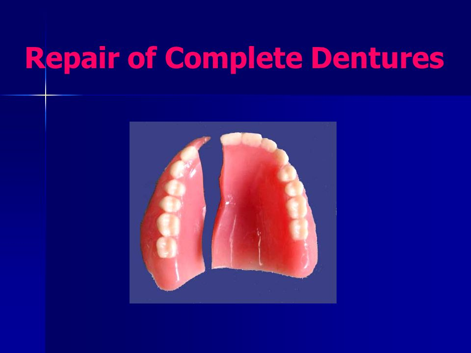 Repair of Complete Dentures