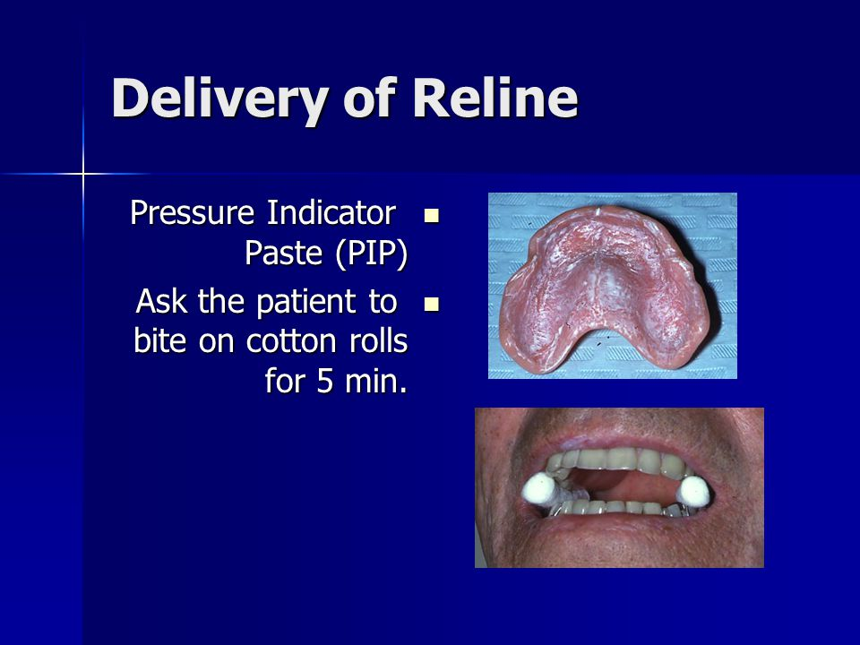 Delivery of Reline Pressure Indicator Paste (PIP)