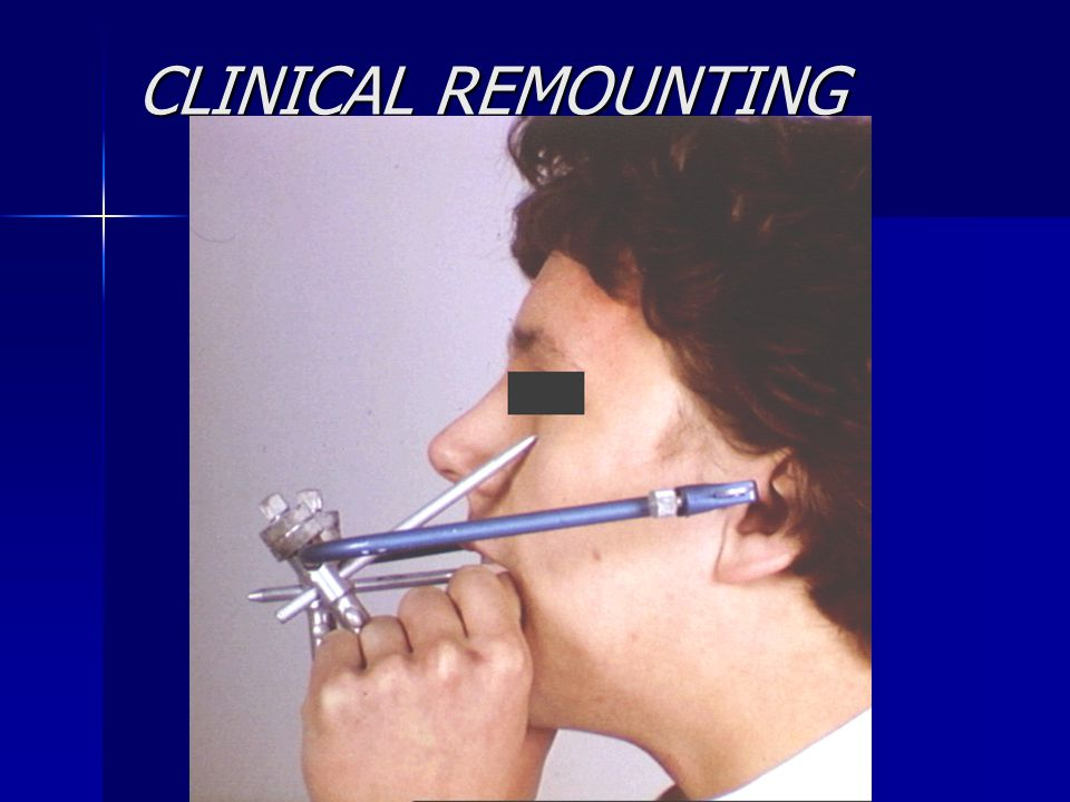 CLINICAL REMOUNTING