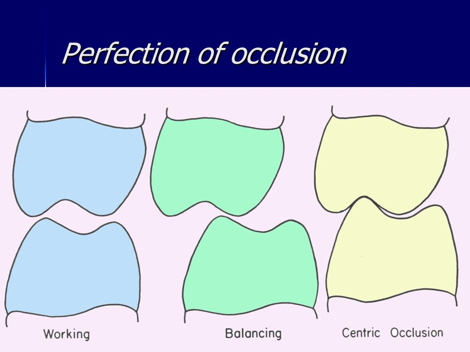 Perfection of occlusion