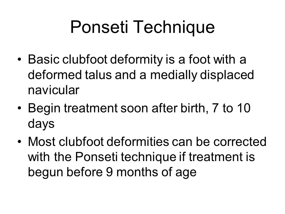 Ponseti Technique Basic clubfoot deformity is a foot with a deformed talus and a medially displaced navicular.