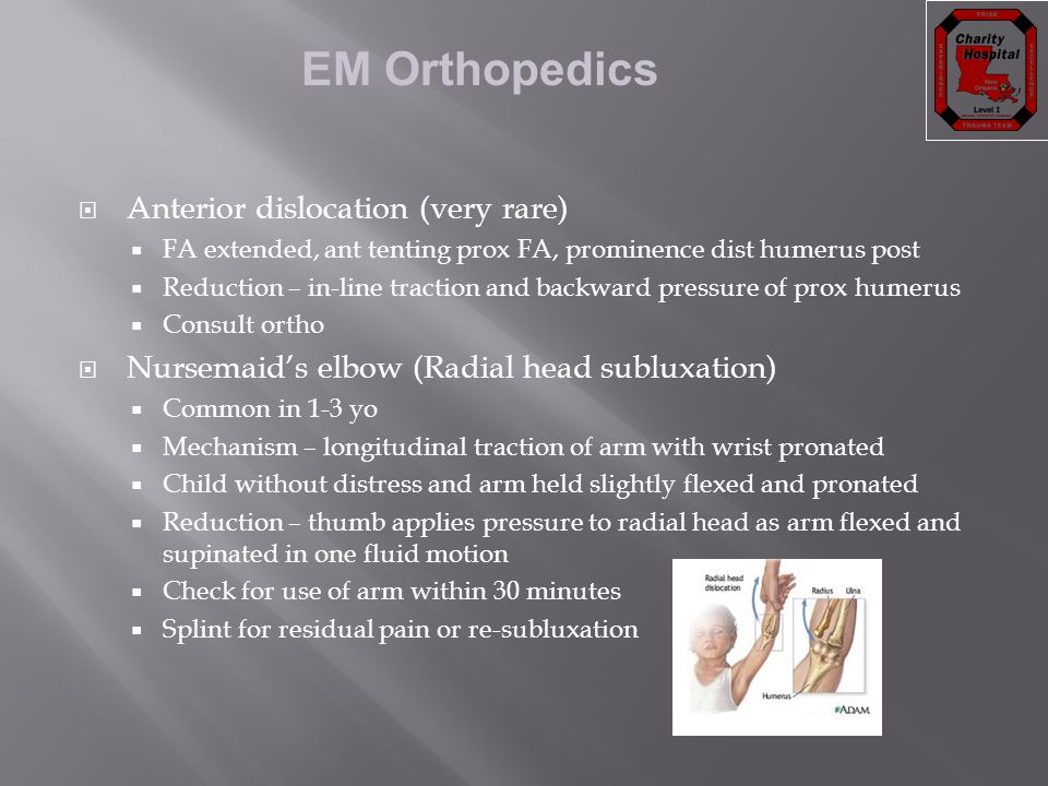 Anterior dislocation (very rare)