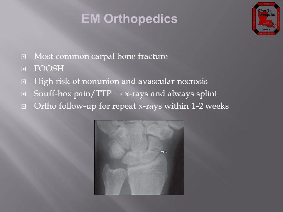 Most common carpal bone fracture