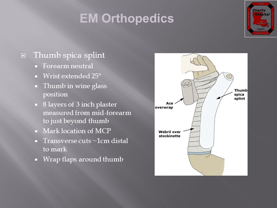 Thumb spica splint Forearm neutral Wrist extended 25°