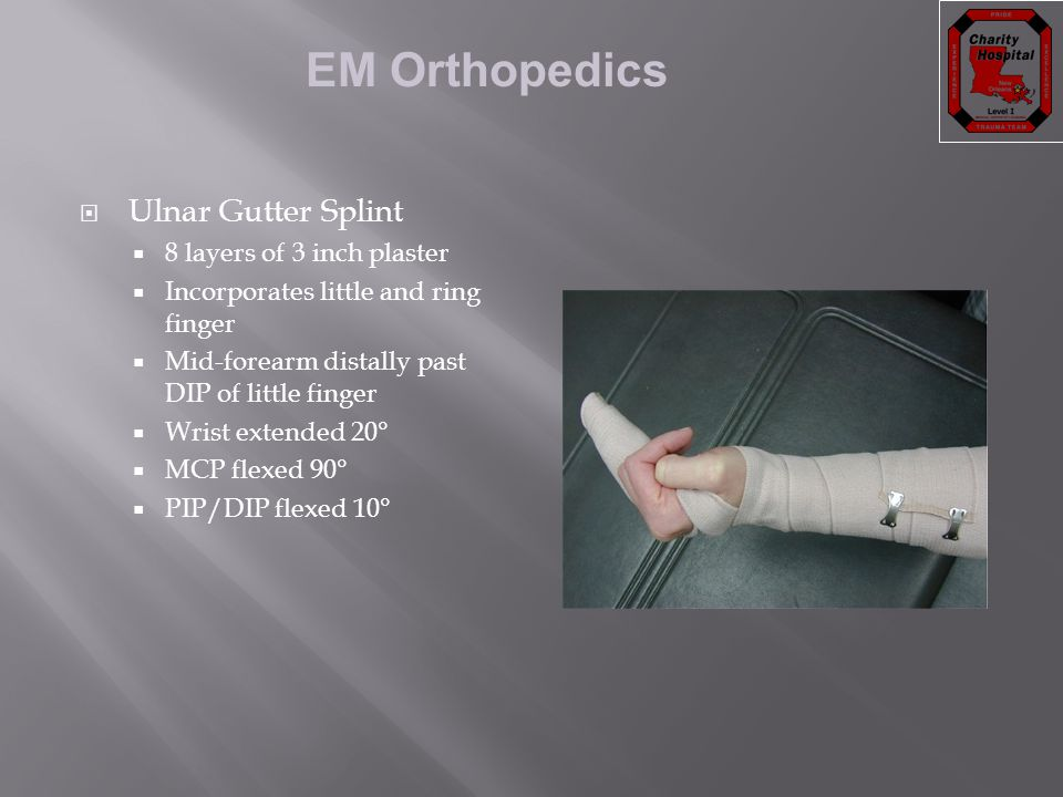 Ulnar Gutter Splint 8 layers of 3 inch plaster