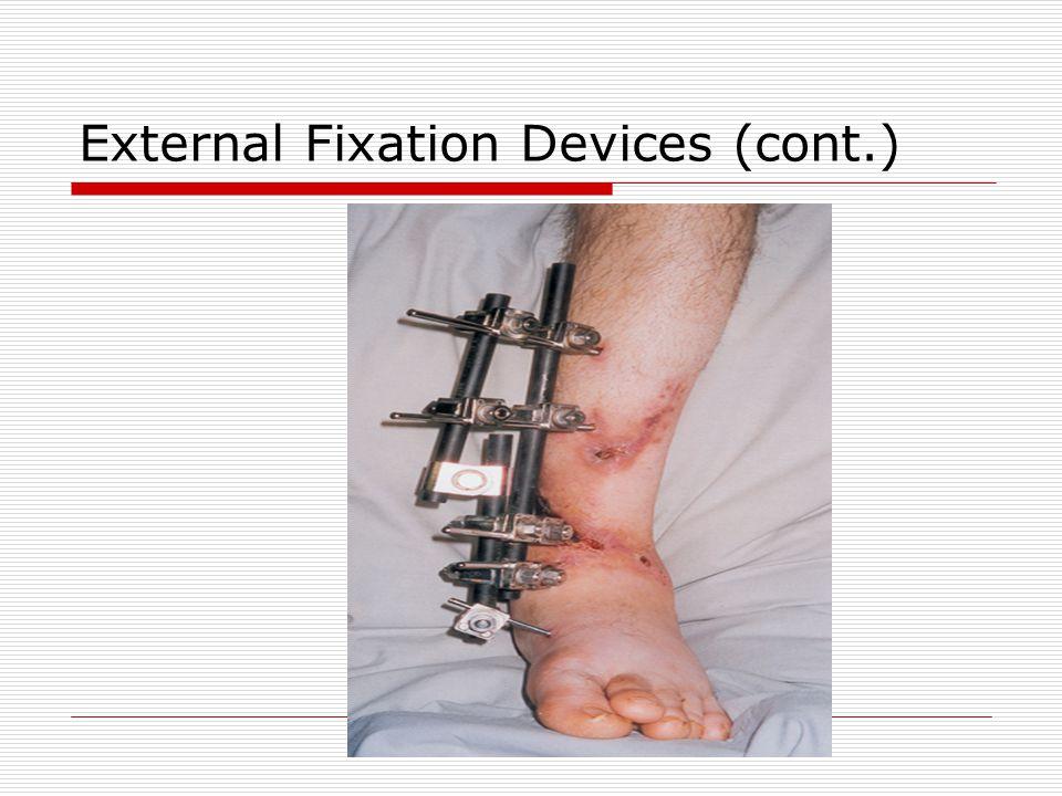 External Fixation Devices (cont.)