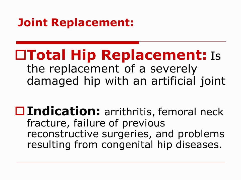 Joint Replacement: Total Hip Replacement: Is the replacement of a severely damaged hip with an artificial joint.