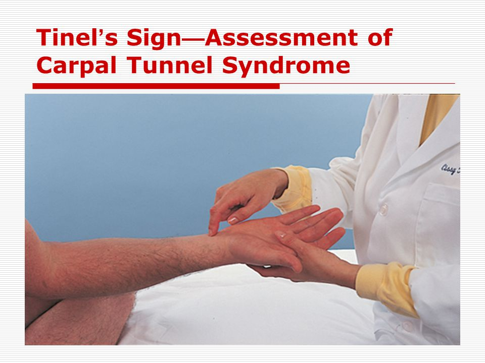 Tinel's Sign—Assessment of Carpal Tunnel Syndrome