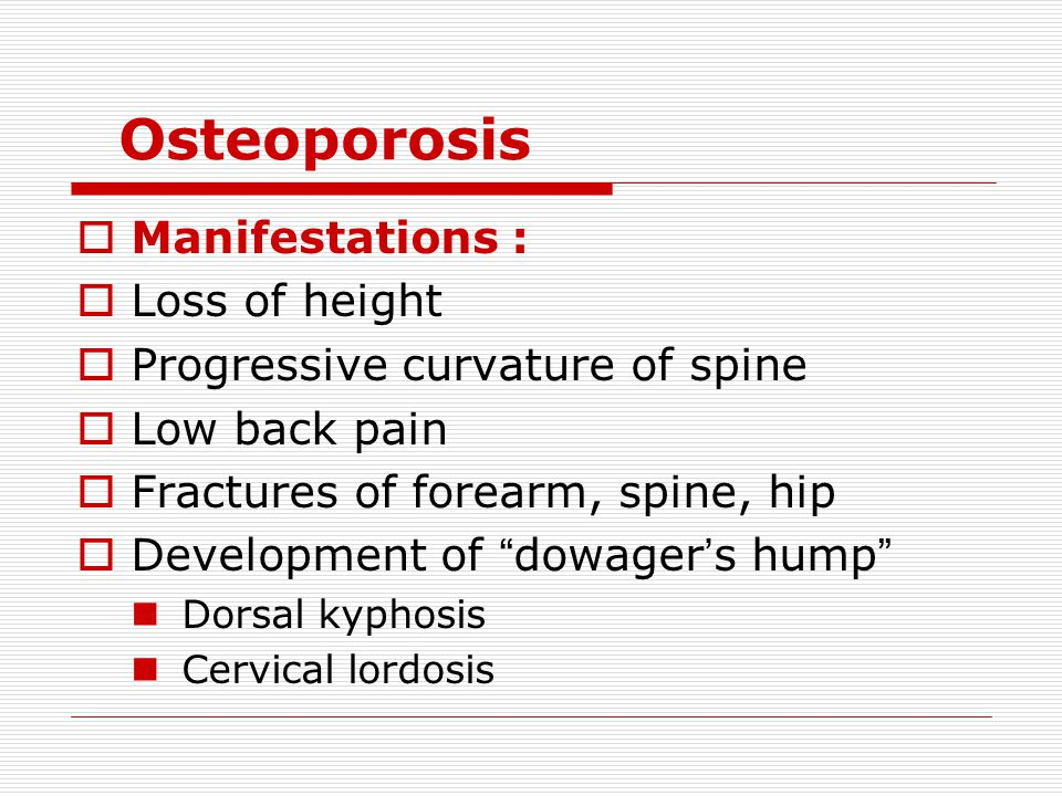 Osteoporosis Manifestations : Loss of height