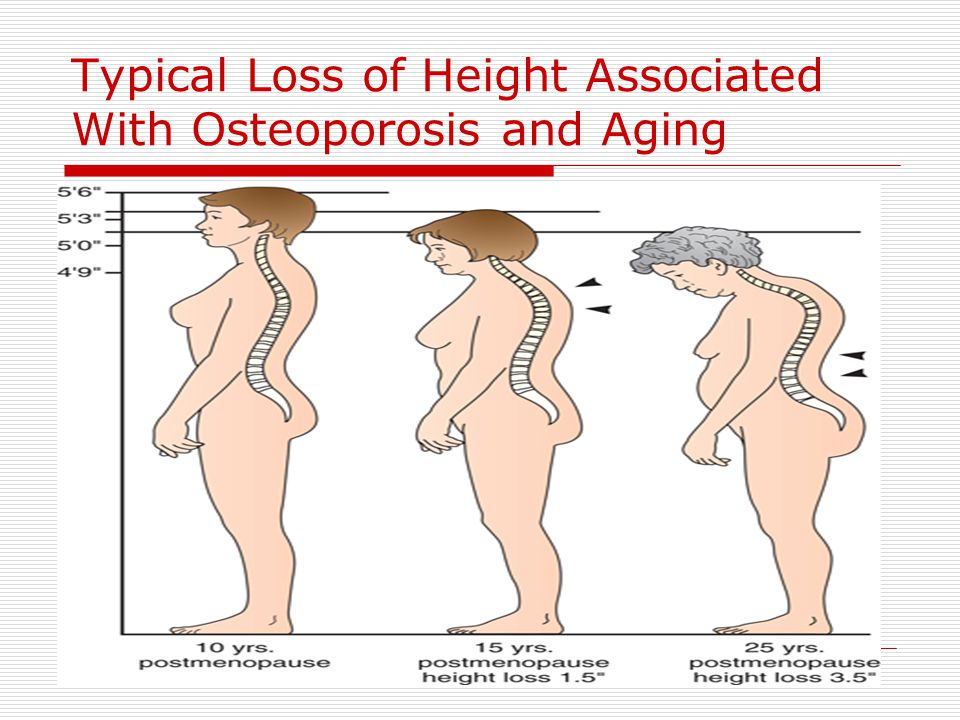 Typical Loss of Height Associated With Osteoporosis and Aging