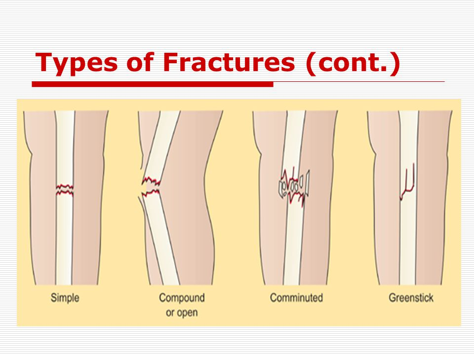 Types of Fractures (cont.)