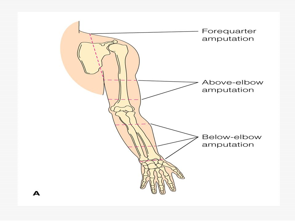 Figure 41–12 Common sites of amputation. A, The upper extremities