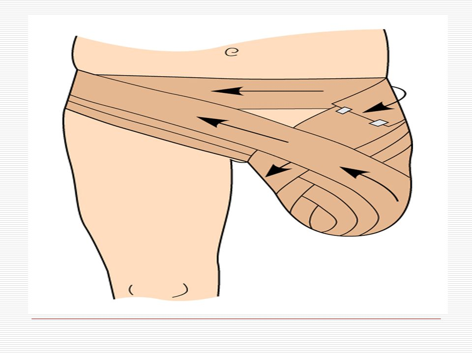 Figure 41–13 Stump dressings increase venous return, decrease edema, and help shape the stump for a prosthesis.